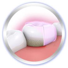 Pro-Expert Sensitiv & sanftes Weiß