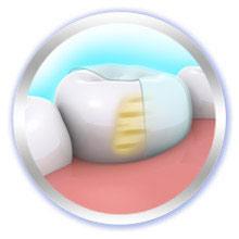 Pro-Expert Zahnschmelz-Regeneration