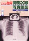 これで納得 胸部X線写真読影―基礎から救急まで