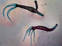 Hydra Adult (With and Without Bud) - Microscope Slide