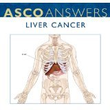 Liver Cancer Fact Sheet (pack of 125 fact sheets)