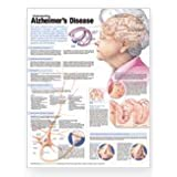 Understanding Alzheimer's Anatomical Chart Laminated