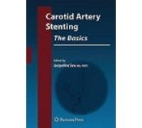 Carotid Artery Stenting The Basics - How to Set Up and Maintain a Cath Lab