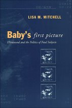 Baby's First Picture: Ultrasound and the Politics of Fetal Subjects