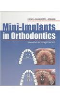 Mini-implants in Orthodontics: Innovative Anchorage Concepts