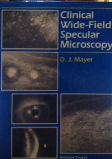 Clinical Wide-Field Specular Microscopy