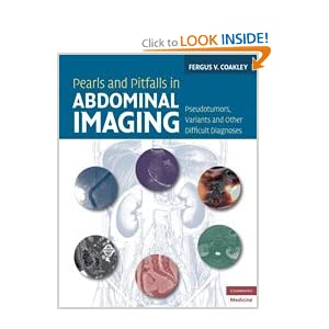 Pearls and Pitfalls in Abdominal Imaging: Pseudotumors, Variants and Other Difficult Diagnoses (Cambridge Medicine)