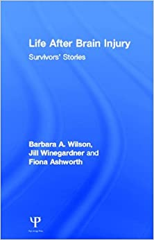 5 famous people who suffered brain injury | Royds Withy King