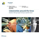 img - for Osteotomies around the Knee: Indications-Planning-Surgical Techniques using Plate Fixators [Hardcover] [2008] 1 Ed. Philipp Lobenhoffer, Ronald J. van Heerwaarden, Alex E. Staubli, Roland P. Jakob book / textbook / text book