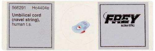 "Frey Scientific Lieder Prepared Human Umbilical Cord T.S. Microscope Slide, 3"" Length X 1"" Width"