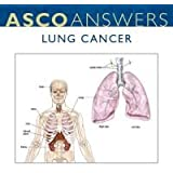 Lung Cancer Fact Sheet (pack of 125 fact sheets)