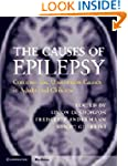 The Causes of Epilepsy: Common and Un...