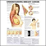 Understanding Breast Cancer Anatomical Chart