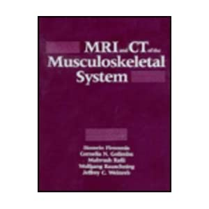 Mri and Ct of the Musculoskeletal System [Illustrated]