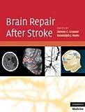 Brain Repair After Stroke