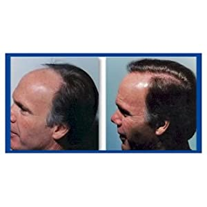 REGAIN HAIR LOSS - Strengthens your hair within days: Amazon.co.uk