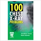 img - for 100 Chest X-Ray Problems - International Edition book / textbook / text book