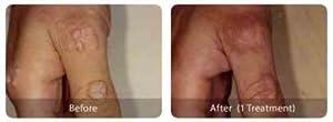 Allied Essenitals, 100% TCA Mole Remover HPV Wart Remover Skin Tag Remover Syringomas Remover TCA Cross