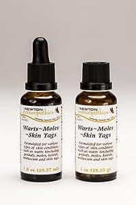 Newton Warts, Moles, Skin Tags