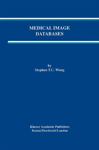 Medical Image Databases (The Springer International Series in Engineering and Computer Science)