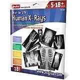 Human X-Rays on Film