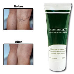 Vein Eraser Cream