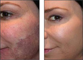 Youthful Glow 30% Glycolic Acid Skin Peel with Free Fan Brush for Sun Damage, Freckles, More Even Skin Tone