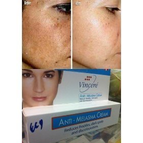 Amazon.com : Vincere Cream - Anti Melasma, Age Spots, Sun Spots