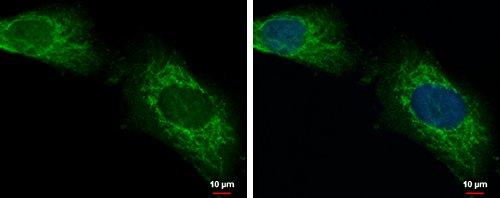 Lonrf2 Antibody - Lon Peptidase N-Terminal Domain And Ring Finger 2, 100 Μl Volume Supplied