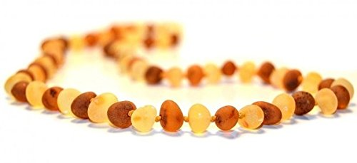 The Art of Cure Baltic Amber Necklace 17 Inch (raw 1x1) - Anti-inflammatory - 1