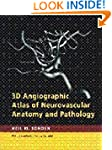 3D Angiographic Atlas of Neurovascula...