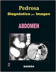 Diagnostico por Imagen: Abdomen 2 / Pasta Dura: PEDROSA: 9788471015945