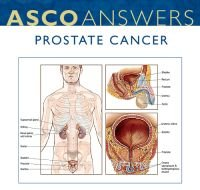 Prostate Cancer Fact Sheet (pack of 125 fact sheets)