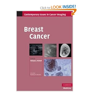 Breast Cancer (Contemporary Issues in Cancer Imaging)