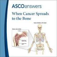 Bone Metastasis Fact Sheet (pack of 125 fact sheets)