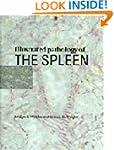 Illustrated Pathology of the Spleen