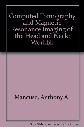 Workbook for Mri and Ct of the Head and Neck