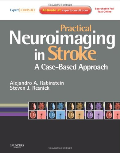 Practical Neuroimaging in Stroke: A Case-Based Approach, 1e