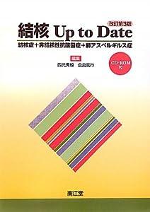 結核 Up to Date―結核症+非結核性抗酸菌症+肺アスペルギルス症