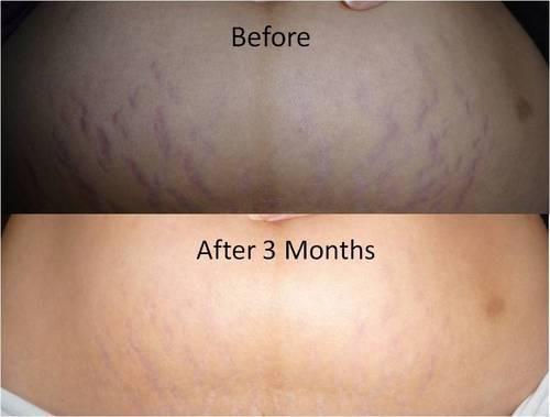 Amazon.com : Mederma Stretch Marks Therapy 5.29 oz : Maternity Skin