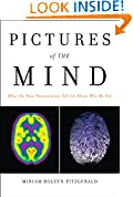 Pictures of the Mind