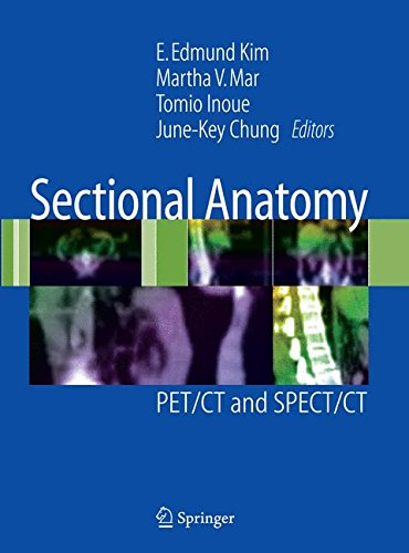 Sectional Anatomy: PET/CT and SPECT/CT