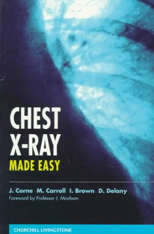 Chest X-Ray Made Easy, 1e
