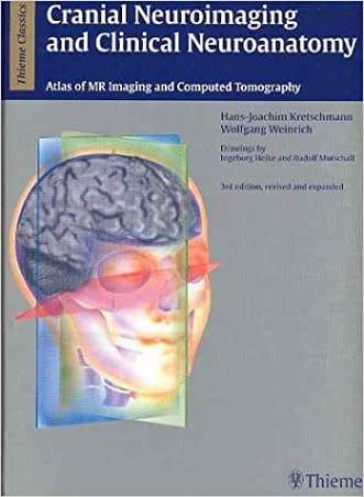Cranial Neuroimaging and Clinical Neuroanatomy: Magnetic Resonance Imaging andComputed Tomography (Thieme Classics)