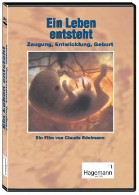 Ein Leben entsteht - Zeugung, Entwicklung, Geburt - DVD - Lehrfilm für Unterricht und Ausbildung - Hagemann 180234 - Einzellizenz