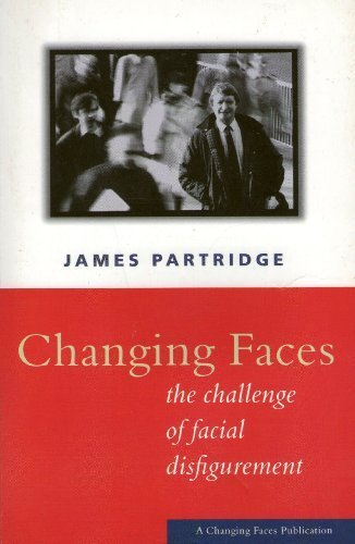 Changing Faces : The Challenge of Facial Disfigurement by Partridge, James (1997) Paperback PDF