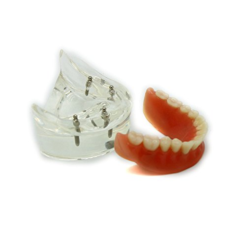 Dental Teaching Model Overdenture Inferior with 4 Implants Demo #6002-02 (Dental Implant Model compare prices)