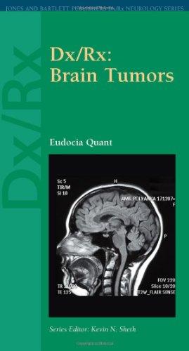 Dx/Rx : Brain Tumors (Dx/Rx Neurology Series)