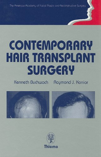 Contemporary Hair Transplant Surgery (American Academy of Facial and Plastic Reconstructive Surgery)