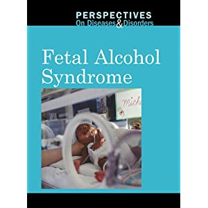 Fetal Alcohol Syndrome Features